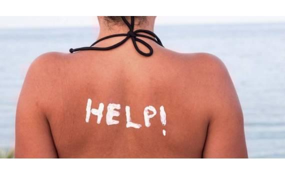 Ηλιακό έγκαυμα : Μήπως το παράκανες με την ηλιοθεραπεία;