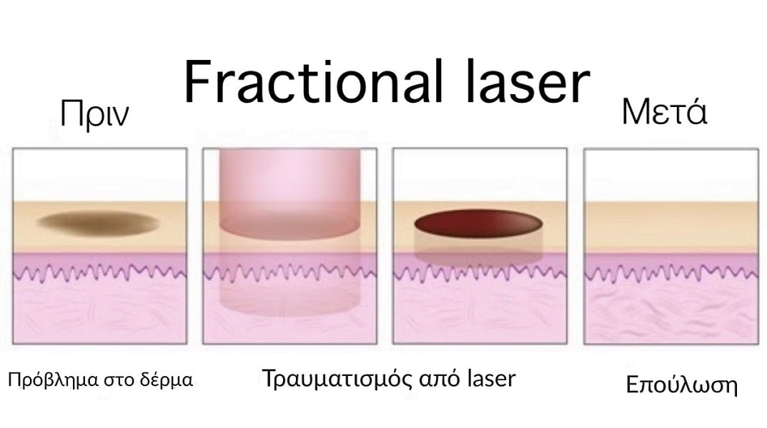 fractional laser διαδικασία vector